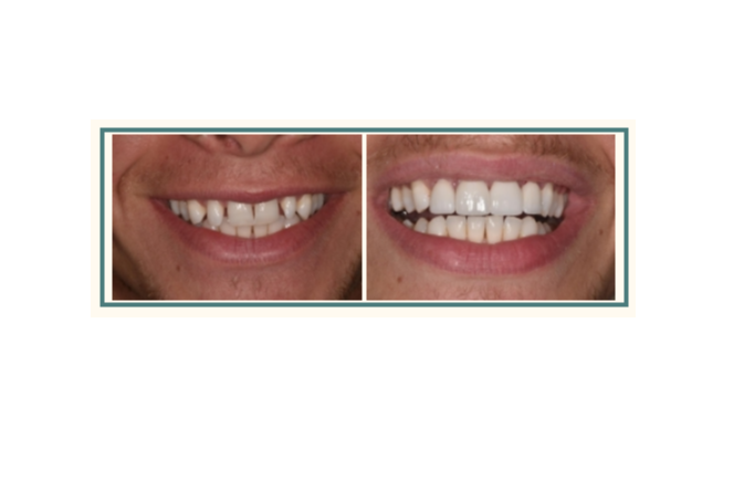 Before and after image showing a young man's rejuvenated smile after cosmetic dentistry in Rochester