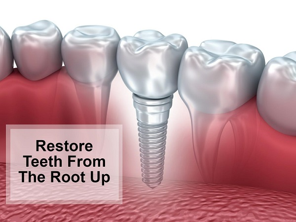 Dental implants to restore your teeth