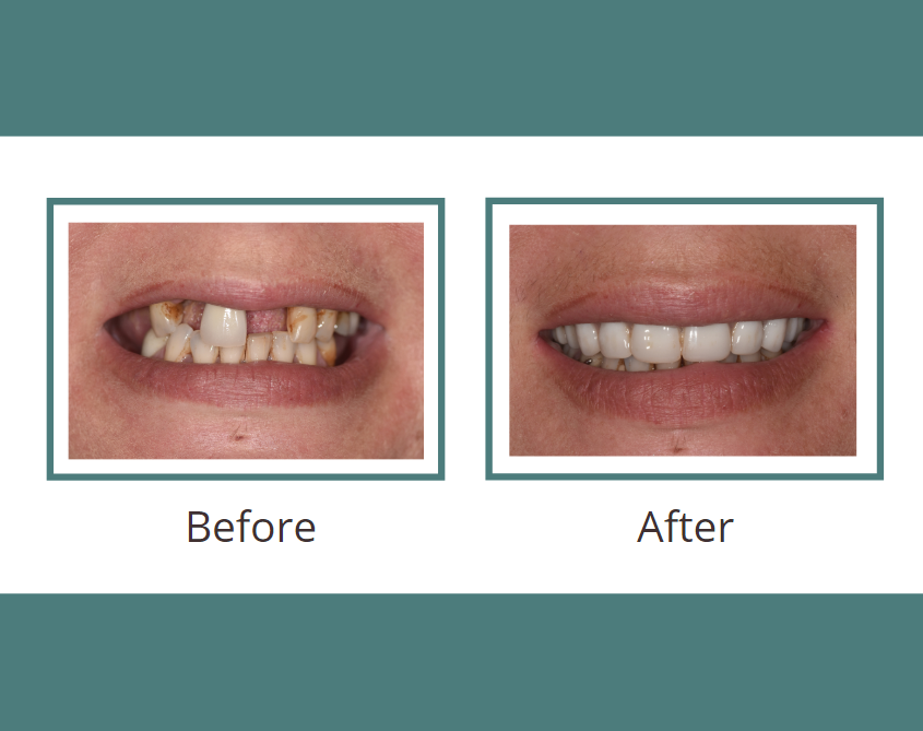 AACD Give Back a Smile before and after picture