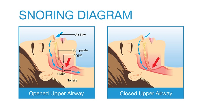 Sleep apnea diagram - Rochester NY dentist