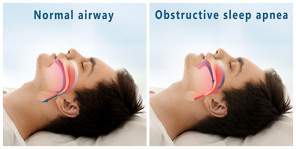 airway obstruction caused by sleep apnea in Greece NY