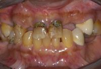 Bone resorption - Oral surgery services in Fairport, NY