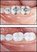 Fairport NY Cerec Porcelain Fillings