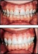 Cerec Porcelain Crowns Fairport NY