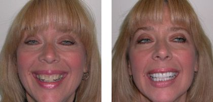 Before & After Rochester Smile Makeover Photos - Kim