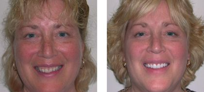 Judy Before After Photo - Fairport NY Cosmetic Dentistry