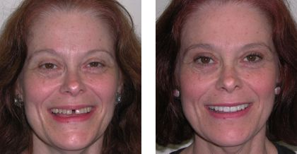 Rochester Makeover Dentistry Before After Photo
