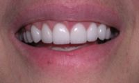 Gummy smile reconstruction after photo - Fairport Porcelain Veneers