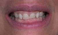 Before closeup photo gummy smile - Laser Cosmetic treatment
