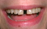 Before closeup photo Rochester Dentistry