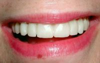 Final veneers picture Rochester