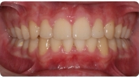 A patient after care from the Center for Cosmetic Dentistry