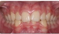 A patient before care from the Center for Cosmetic Dentistry