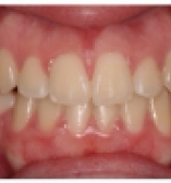 After care from Dr. Sussman and Dr. Pogal at the Center for Cosmetic Dentistry