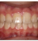After Orthodontic care from the Center for Cosmetic Dentistry