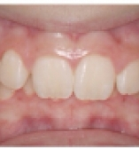 Before Orthodontic care from the Center for Cosmetic Dentistry