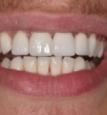 Closing spaces with porcelain veneers