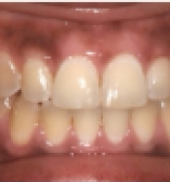 Improving patient bite after care from the Center for Cosmetic Dentistry