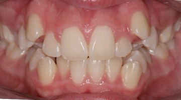 Before photo of patient with teeth crowding