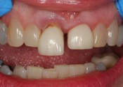 Supererupted Malocclusion Photo - Find out how Fairport Dental Implants can help